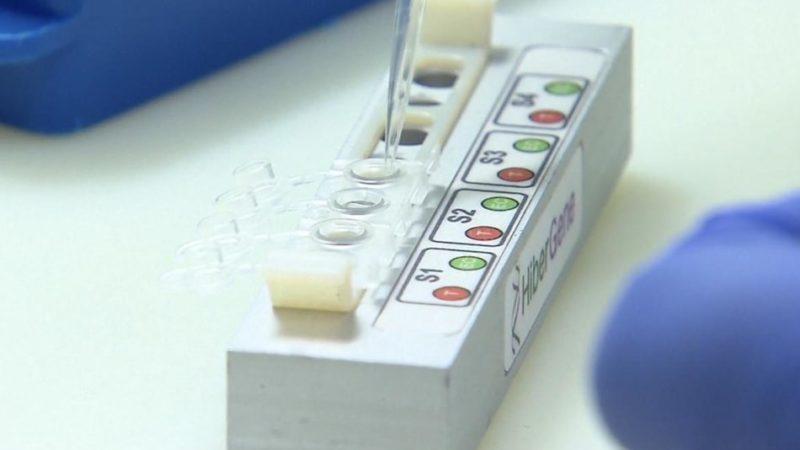 Zero decessi, 180 positivi al molecolare, 149 all'antigenico. 53 guariti. 43.271 vaccinazioni